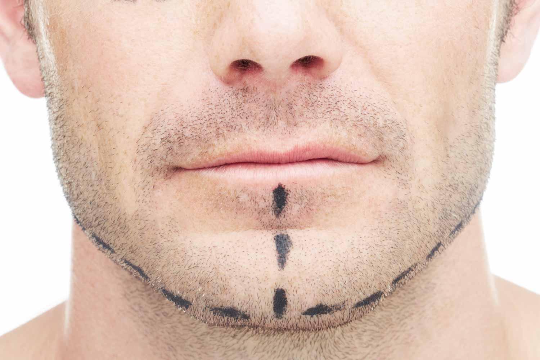 dr vasse chirurgie esth tique toulouse lifting cervico facial inferieur. Black Bedroom Furniture Sets. Home Design Ideas