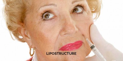 LIPOSTRUCTURE OR MICROLIPOSTRUCTURE OR FAT REINJECTION – WOMEN
