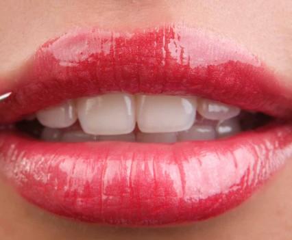 Produits de comblement pour les lèvres
