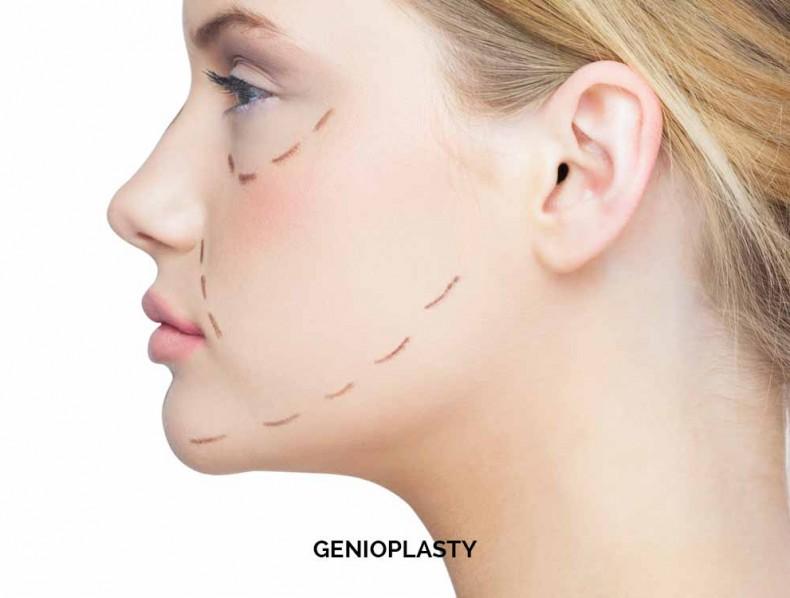 GENIOPLASTY OR CHINSURGERY